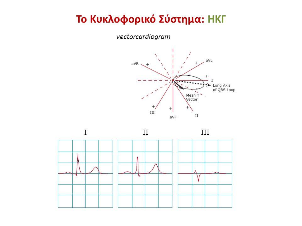 vectorcardiogram