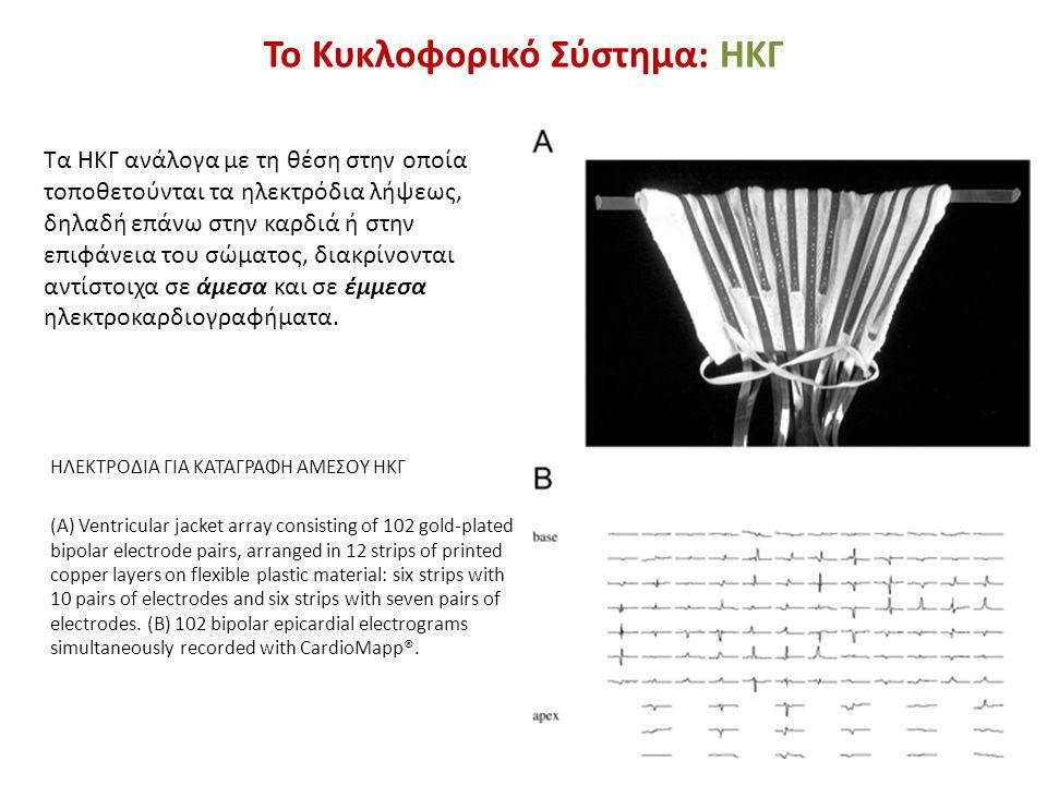 Το Κυκλοφορικό Σύστημα: ΗΚΓ ΗΛΕΚΤΡΟΔΙΑ ΓΙΑ ΚΑΤΑΓΡΑΦΗ ΑΜΕΣΟΥ ΗΚΓ (A) Ventricular jacket array consisting of 102 gold-plated bipolar electrode pairs, ar