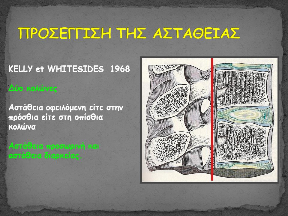 KELLY et WHITESIDES 1968 Δύο κολώνες Αστάθεια οφειλόμενη είτε στην πρόσθια είτε στη οπίσθια κολώνα Αστάθεια προσωρινή και αστάθεια διαρκείας.
