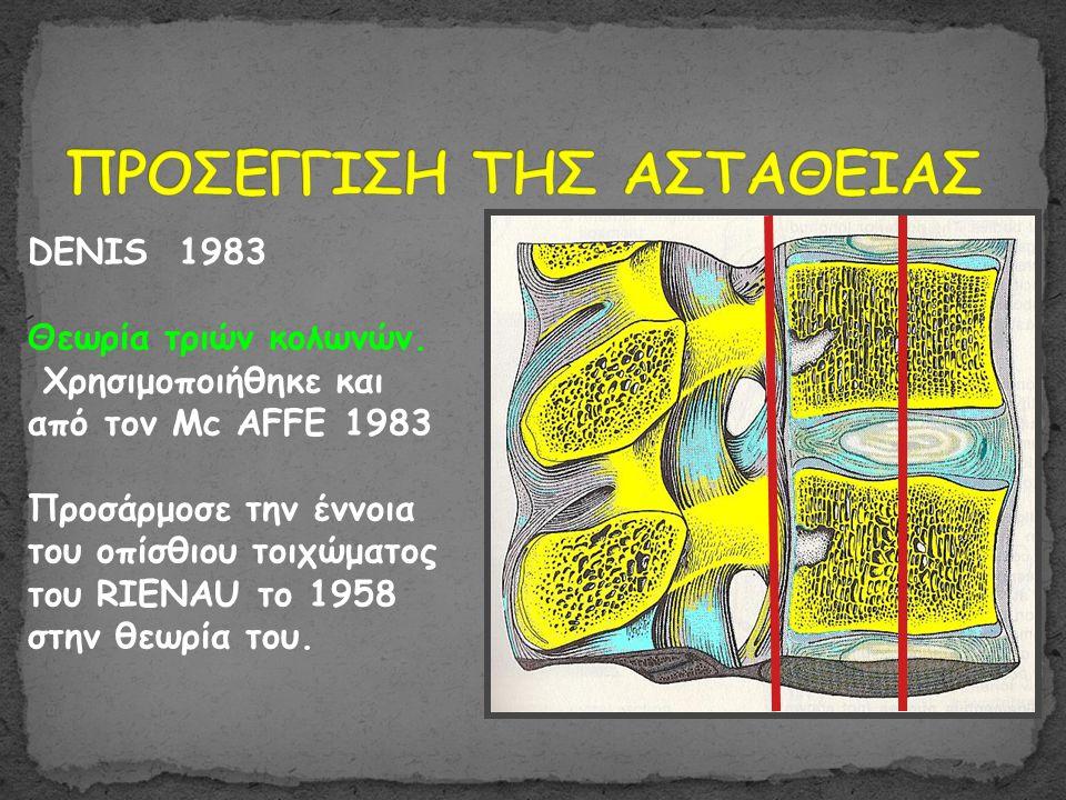 DENIS 1983 Θεωρία τριών κολωνών. Χρησιμοποιήθηκε και από τον Mc AFFE 1983 Προσάρμοσε την έννοια του οπίσθιου τοιχώματος του RIENAU το 1958 στην θεωρία