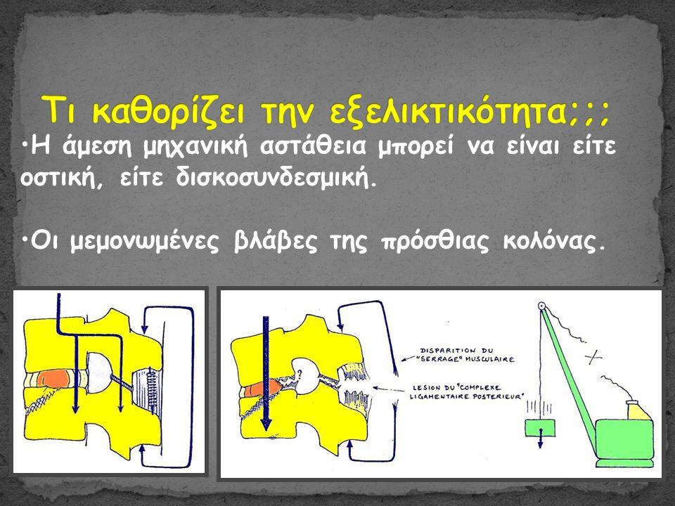 •Η άμεση μηχανική αστάθεια μπορεί να είναι είτε οστική, είτε δισκοσυνδεσμική.