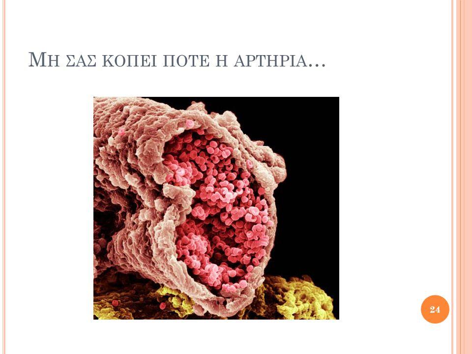Μ Η ΣΑΣ ΚΟΠΕΙ ΠΟΤΕ Η ΑΡΤΗΡΙΑ … 24