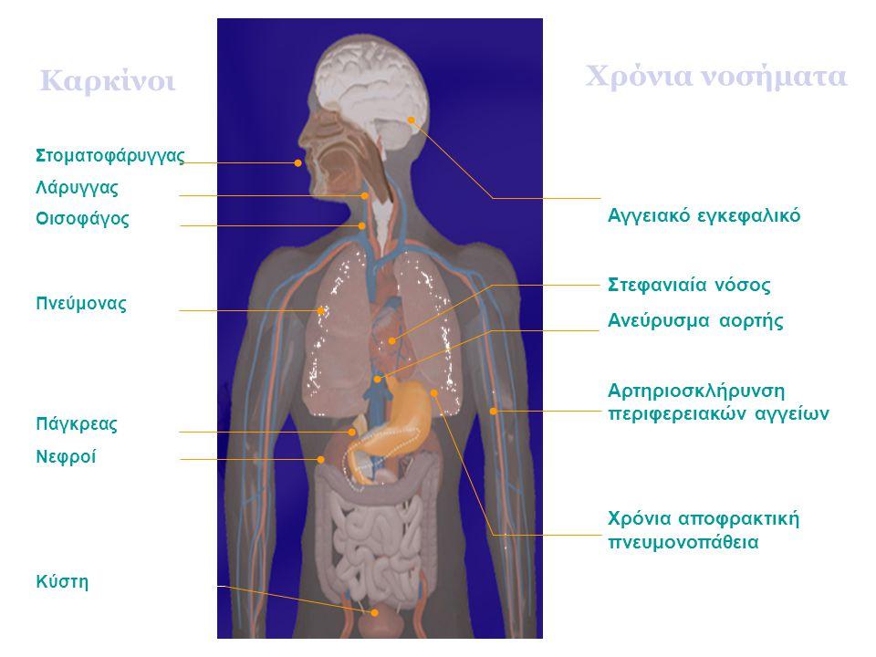 Καρκίνοι Πνεύμονας Λάρυγγας Οισοφάγος Κύστη Νεφροί Πάγκρεας Στοματοφάρυγγας Αγγειακό εγκεφαλικό Στεφανιαία νόσος Ανεύρυσμα αορτής Αρτηριοσκλήρυνση περιφερειακών αγγείων Χρόνια αποφρακτική πνευμονοπάθεια Χρόνια νοσήματα