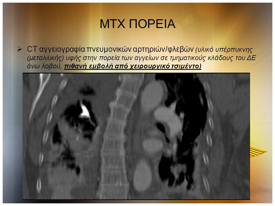 ΜΤΧ ΠΟΡΕΙΑ  CT αγγειογραφία πνευμονικών αρτηριών/φλεβών (υλικό υπέρπυκνης (μεταλλικής) υφής στην πορεία των αγγείων σε τμηματικούς κλάδους του ΔΕ άνω