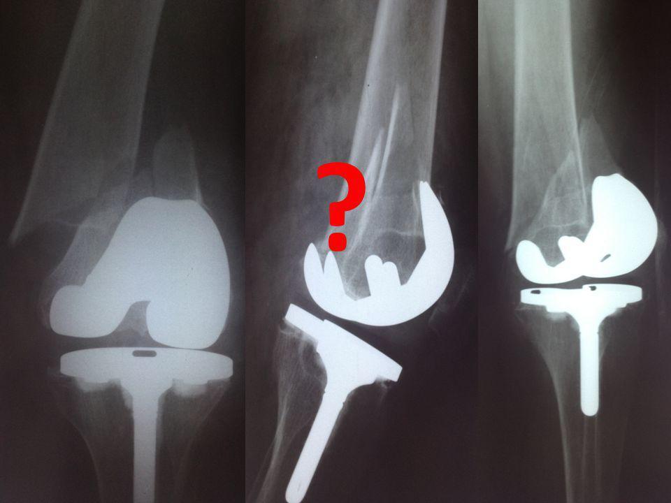 ΜΤΧ ΠΟΡΕΙΑ  CT αγγειογραφία πνευμονικών αρτηριών/φλεβών (υλικό υπέρπυκνης (μεταλλικής) υφής στην πορεία των αγγείων σε τμηματικούς κλάδους του ΔΕ άνω λοβού, πιθανή εμβολή από χειρουργικό τσιμέντο)