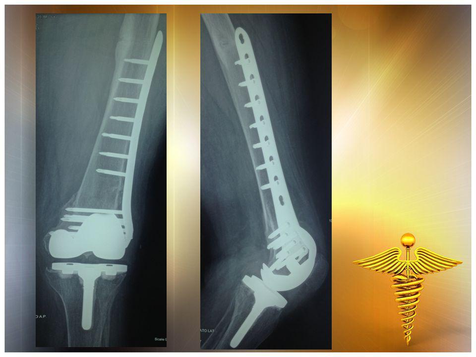 ΧΕΙΡΟΥΡΓΕΙΟ  Αφαίρεση προηγούμενων υλικών οστεοσύνθεσης (πλάκα-βίδες)  Αφαίρεση μηριαίας πρόθεσης, κνημιαίας πρόθεσης και πολυαιθυλενίου  Τοποθέτηση ολικής αρθροπλαστικής γόνατος συνδεδεμένου τύπου με τσιμέντο με μακρύ μηριαίο στυλεό