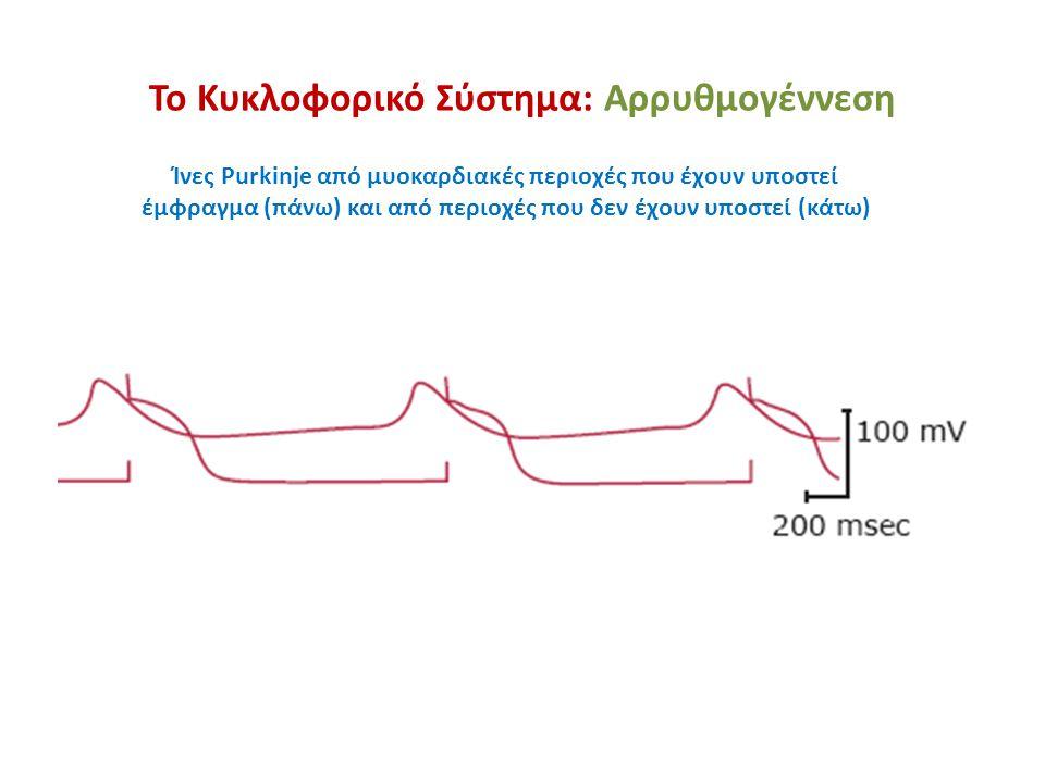 Ίνες Purkinje από μυοκαρδιακές περιοχές που έχουν υποστεί έμφραγμα (πάνω) και από περιοχές που δεν έχουν υποστεί (κάτω)