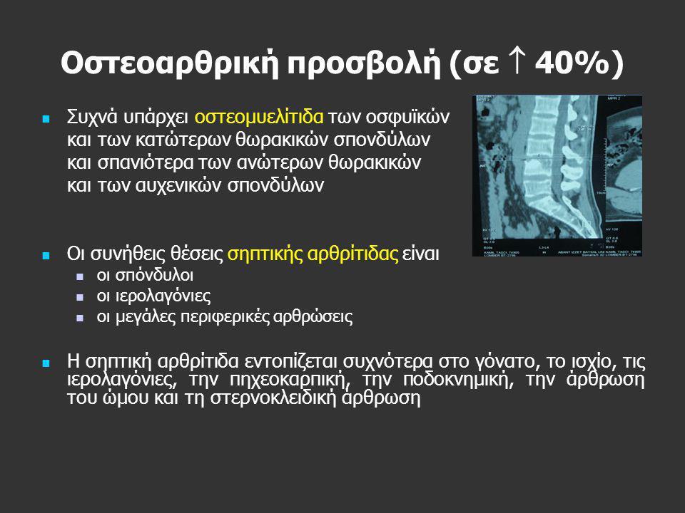Οστεοαρθρική προσβολή (σε  40%)   Συχνά υπάρχει οστεομυελίτιδα των οσφυϊκών και των κατώτερων θωρακικών σπονδύλων και σπανιότερα των ανώτερων θωρακ