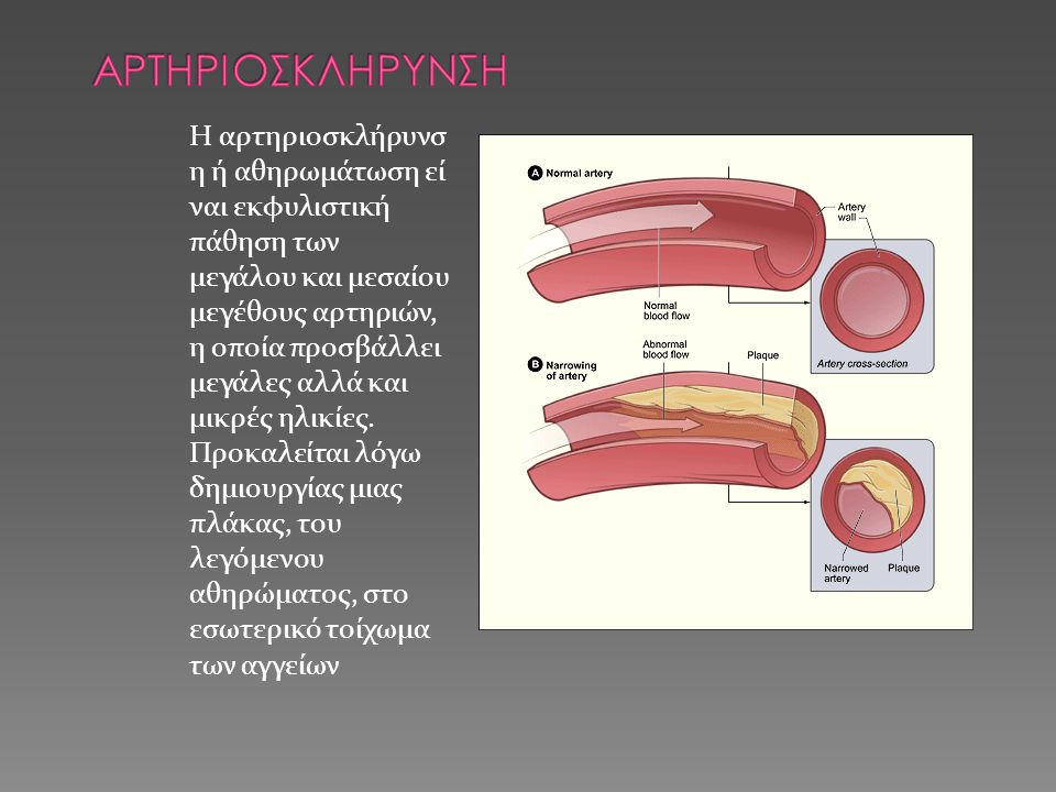 Η αρτηριοσκλήρυνσ η ή αθηρωμάτωση εί ναι εκφυλιστική πάθηση των μεγάλου και μεσαίου μεγέθους αρτηριών, η οποία προσβάλλει μεγάλες αλλά και μικρές ηλικίες.