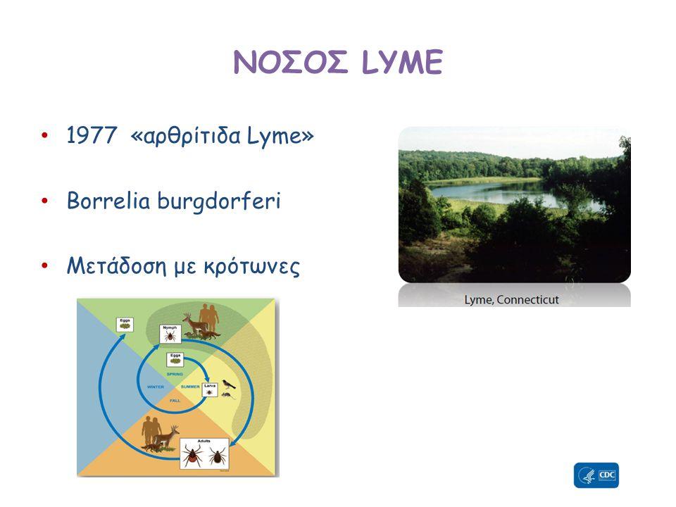 ΝΟΣΟΣ LYME • 1977 «αρθρίτιδα Lyme» • Borrelia burgdorferi • Μετάδοση με κρότωνες