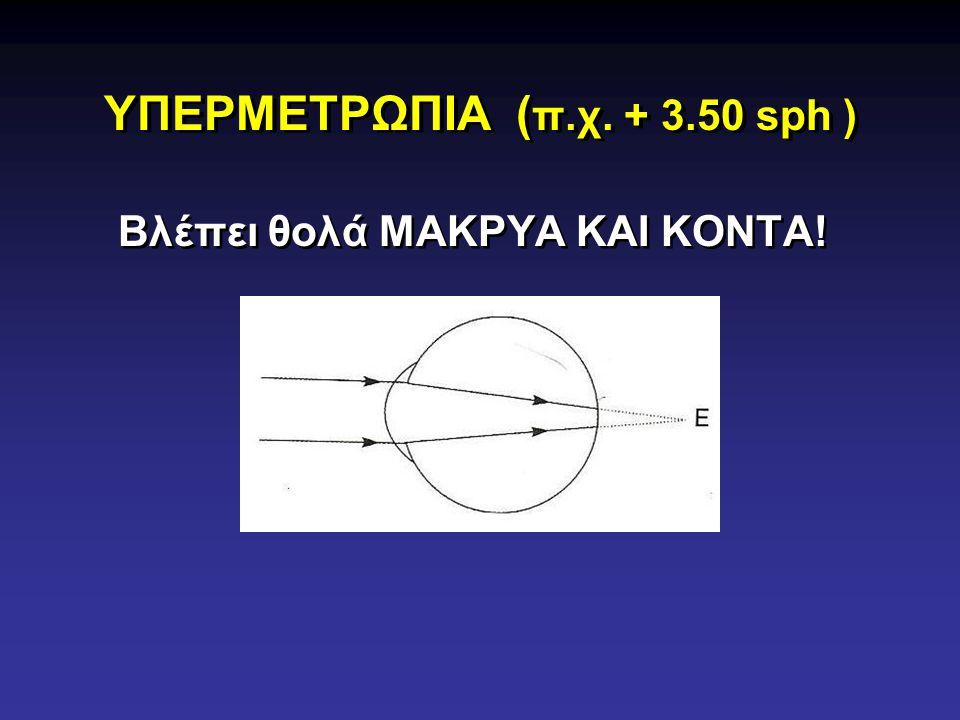 ΥΠΕΡΜΕΤΡΩΠΙΑ ( π.χ. + 3.50 sph ) Βλέπει θολά ΜΑΚΡΥΑ ΚΑΙ ΚΟΝΤΑ!