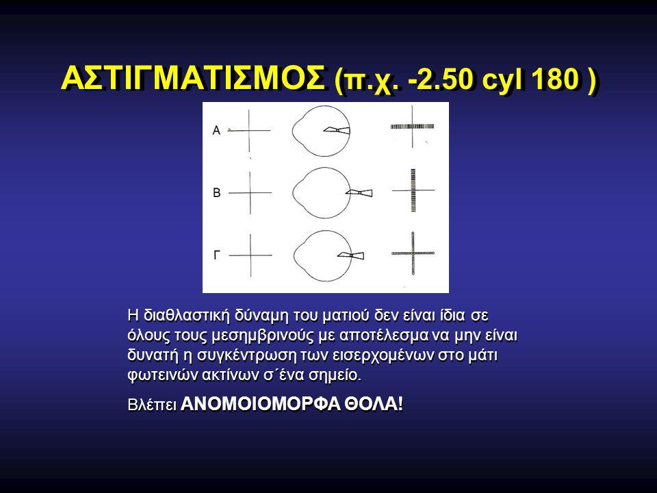 ΑΣΤΙΓΜΑΤΙΣΜΟΣ (π.χ. -2.50 cyl 180 ) Η διαθλαστική δύναμη του ματιού δεν είναι ίδια σε όλους τους μεσημβρινούς με αποτέλεσμα να μην είναι δυνατή η συγκ