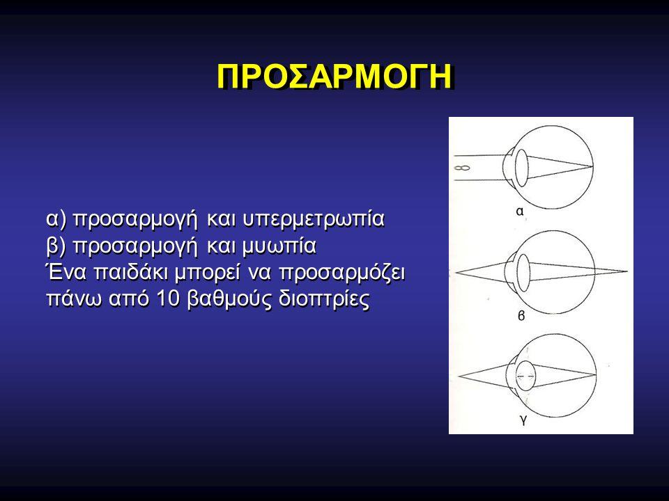 ΠΡΟΣΑΡΜΟΓΗ α) προσαρμογή και υπερμετρωπία β) προσαρμογή και μυωπία Ένα παιδάκι μπορεί να προσαρμόζει πάνω από 10 βαθμούς διοπτρίες α) προσαρμογή και υ