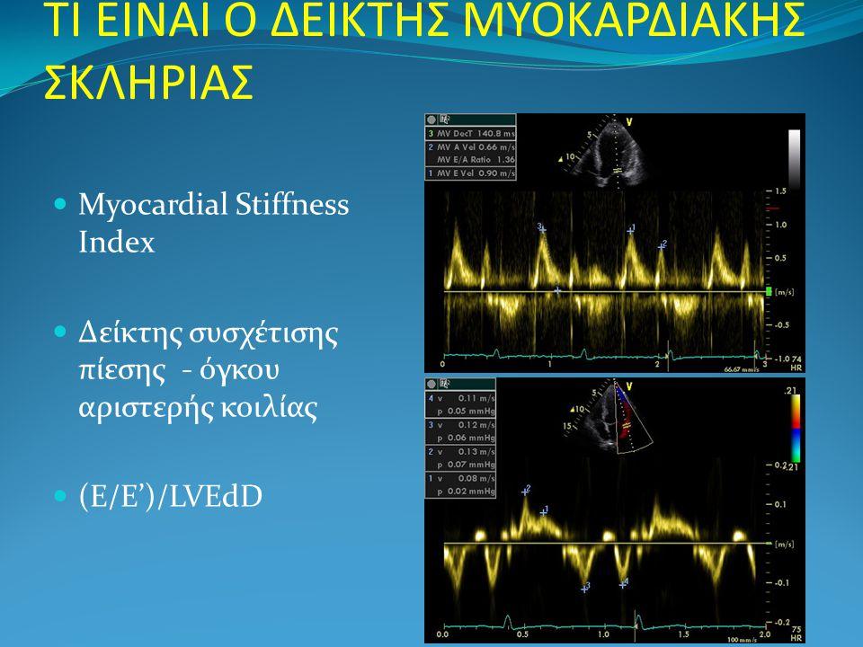 ΤΙ ΕΙΝΑΙ Ο ΔΕΙΚΤΗΣ ΜΥΟΚΑΡΔΙΑΚΗΣ ΣΚΛΗΡΙΑΣ  Myocardial Stiffness Index  Δείκτης συσχέτισης πίεσης - όγκου αριστερής κοιλίας  (Ε/Ε')/LVEdD