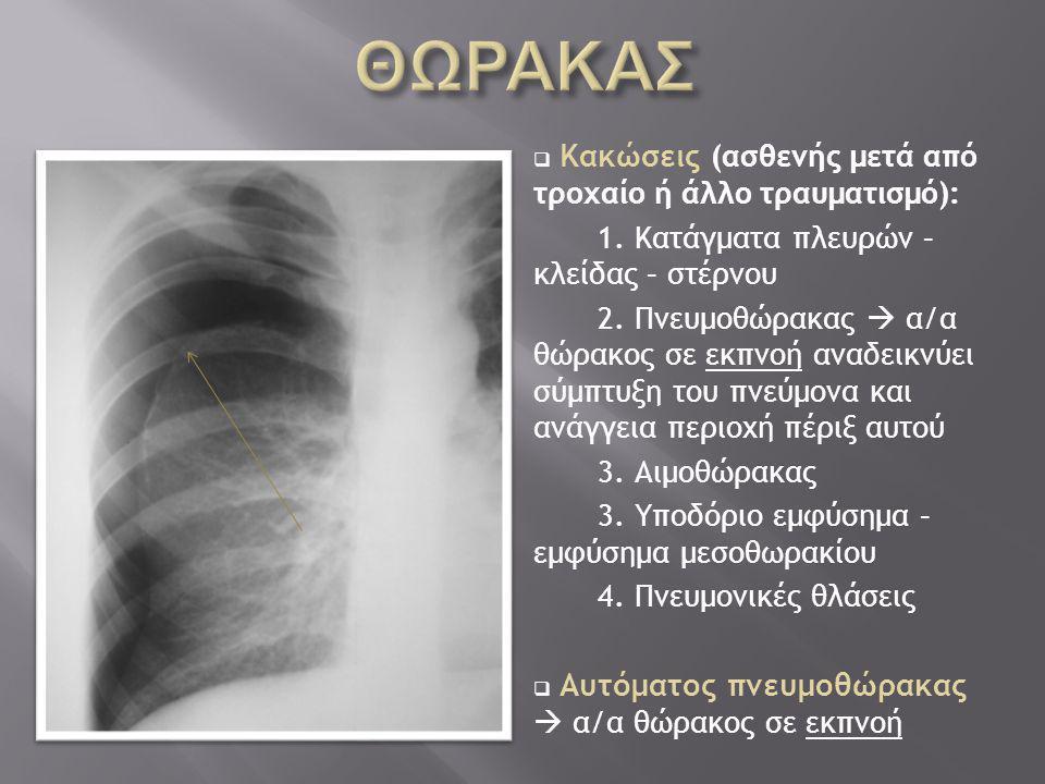  Κακώσεις (ασθενής μετά από τροχαίο ή άλλο τραυματισμό): 1. Κατάγματα πλευρών – κλείδας – στέρνου 2. Πνευμοθώρακας  α/α θώρακος σε εκπνοή αναδεικνύε