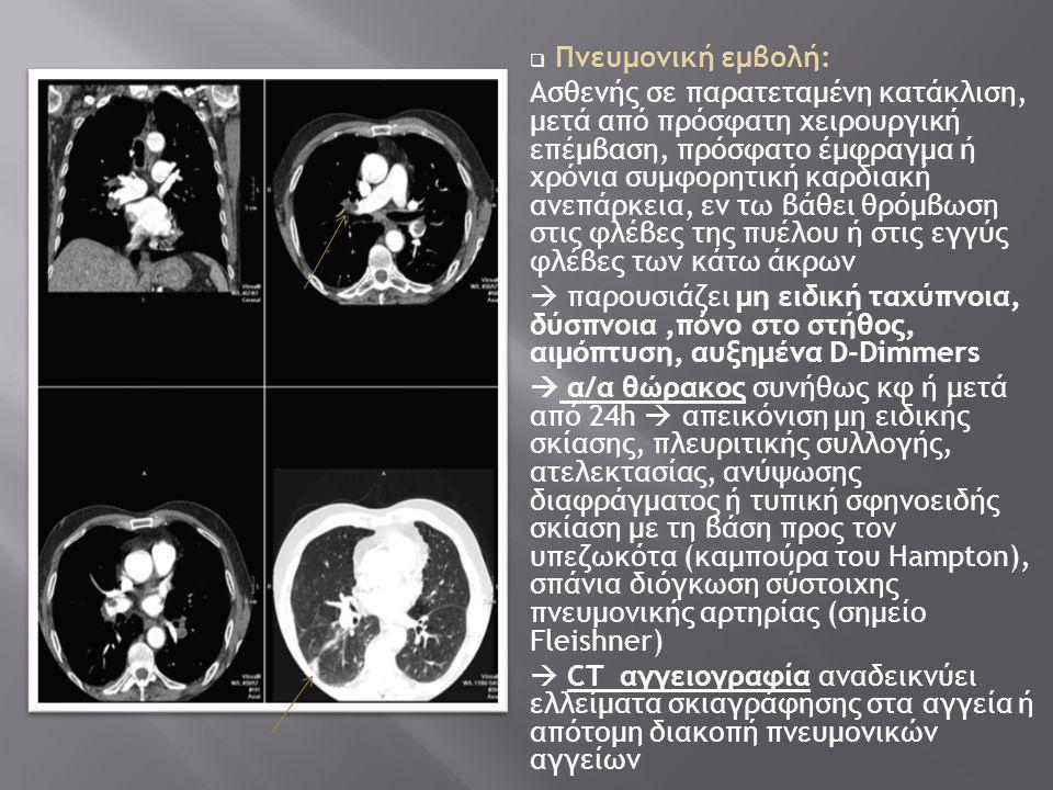  Πνευμονική εμβολή: Ασθενής σε παρατεταμένη κατάκλιση, μετά από πρόσφατη χειρουργική επέμβαση, πρόσφατο έμφραγμα ή χρόνια συμφορητική καρδιακή ανεπάρκεια, εν τω βάθει θρόμβωση στις φλέβες της πυέλου ή στις εγγύς φλέβες των κάτω άκρων  παρουσιάζει μη ειδική ταχύπνοια, δύσπνοια,πόνο στο στήθος, αιμόπτυση, αυξημένα D-Dimmers  α/α θώρακος συνήθως κφ ή μετά από 24h  απεικόνιση μη ειδικής σκίασης, πλευριτικής συλλογής, ατελεκτασίας, ανύψωσης διαφράγματος ή τυπική σφηνοειδής σκίαση με τη βάση προς τον υπεζωκότα (καμπούρα του Hampton), σπάνια διόγκωση σύστοιχης πνευμονικής αρτηρίας (σημείο Fleishner)  CT αγγειογραφία αναδεικνύει ελλείματα σκιαγράφησης στα αγγεία ή απότομη διακοπή πνευμονικών αγγείων