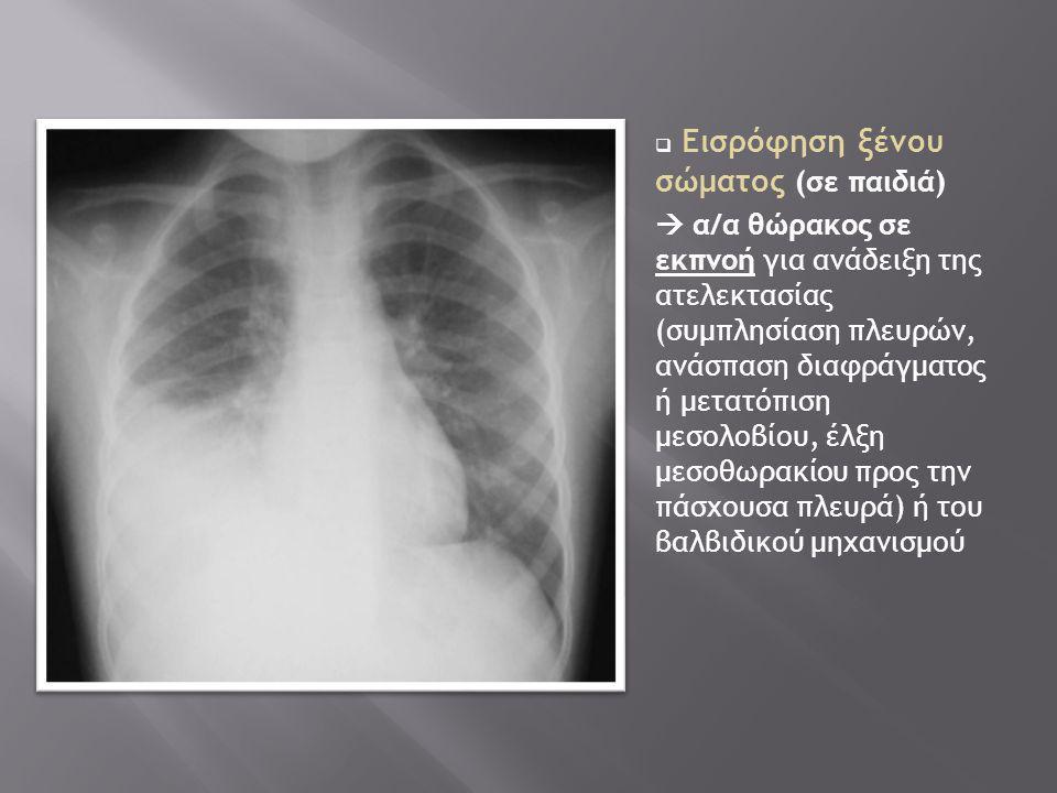  Εισρόφηση ξένου σώματος (σε παιδιά)  α/α θώρακος σε εκπνοή για ανάδειξη της ατελεκτασίας (συμπλησίαση πλευρών, ανάσπαση διαφράγματος ή μετατόπιση μ