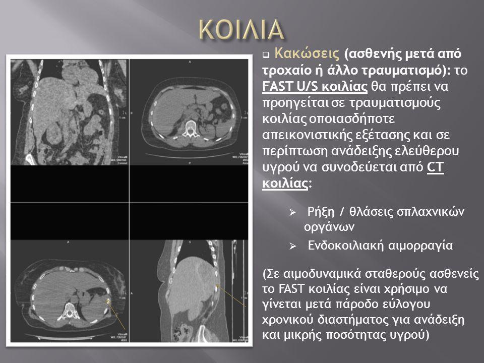  Κακώσεις (ασθενής μετά από τροχαίο ή άλλο τραυματισμό): το FAST U/S κοιλίας θα πρέπει να προηγείται σε τραυματισμούς κοιλίας οποιασδήποτε απεικονιστικής εξέτασης και σε περίπτωση ανάδειξης ελεύθερου υγρού να συνοδεύεται από CT κοιλίας:  Ρήξη / θλάσεις σπλαχνικών οργάνων  Ενδοκοιλιακή αιμορραγία (Σε αιμοδυναμικά σταθερούς ασθενείς το FAST κοιλίας είναι χρήσιμο να γίνεται μετά πάροδο εύλογου χρονικού διαστήματος για ανάδειξη και μικρής ποσότητας υγρού)
