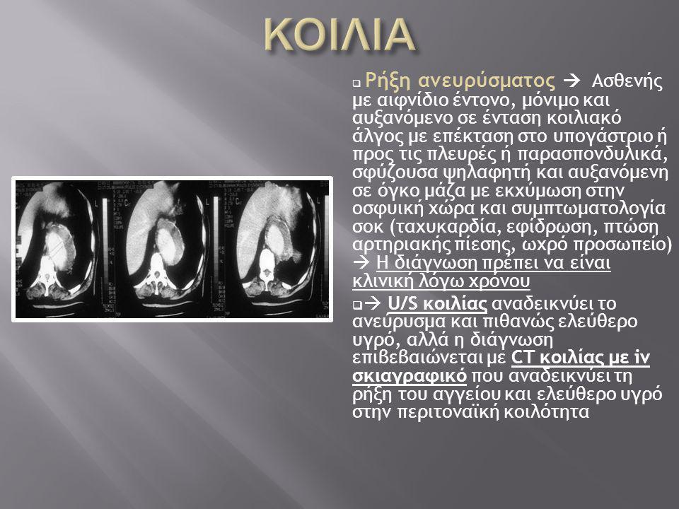  Ρήξη ανευρύσματος  Ασθενής με αιφνίδιο έντονο, μόνιμο και αυξανόμενο σε ένταση κοιλιακό άλγος με επέκταση στο υπογάστριο ή προς τις πλευρές ή παρασπονδυλικά, σφύζουσα ψηλαφητή και αυξανόμενη σε όγκο μάζα με εκχύμωση στην οσφυική χώρα και συμπτωματολογία σοκ (ταχυκαρδία, εφίδρωση, πτώση αρτηριακής πίεσης, ωχρό προσωπείο)  Η διάγνωση πρέπει να είναι κλινική λόγω χρόνου   U/S κοιλίας αναδεικνύει το ανεύρυσμα και πιθανώς ελεύθερο υγρό, αλλά η διάγνωση επιβεβαιώνεται με CT κοιλίας με iv σκιαγραφικό που αναδεικνύει τη ρήξη του αγγείου και ελεύθερο υγρό στην περιτοναϊκή κοιλότητα