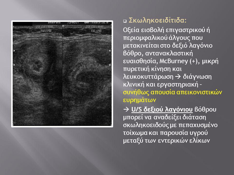 Σκωληκοειδίτιδα: Οξεία εισβολή επιγαστρικού ή περιομφαλικού άλγους που μετακινείται στο δεξιό λαγόνιο βόθρο, αντανακλαστική ευαισθησία, McBurney (+)