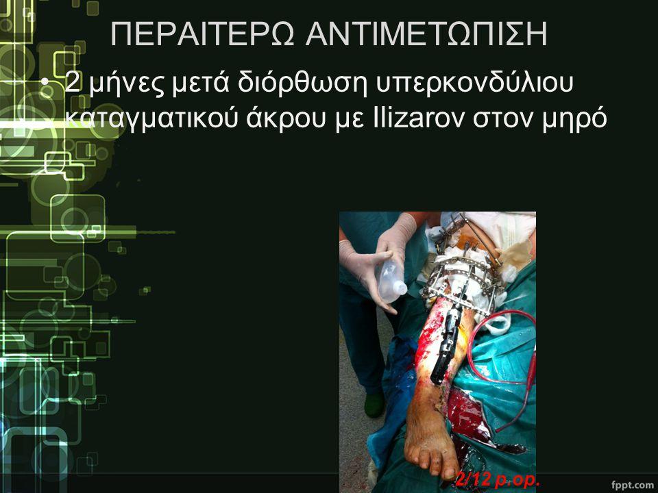 ΠΕΡΑΙΤΕΡΩ ΑΝΤΙΜΕΤΩΠΙΣΗ •2 μήνες μετά διόρθωση υπερκονδύλιου καταγματικού άκρου με Ilizarov στον μηρό 2/12 p.op.