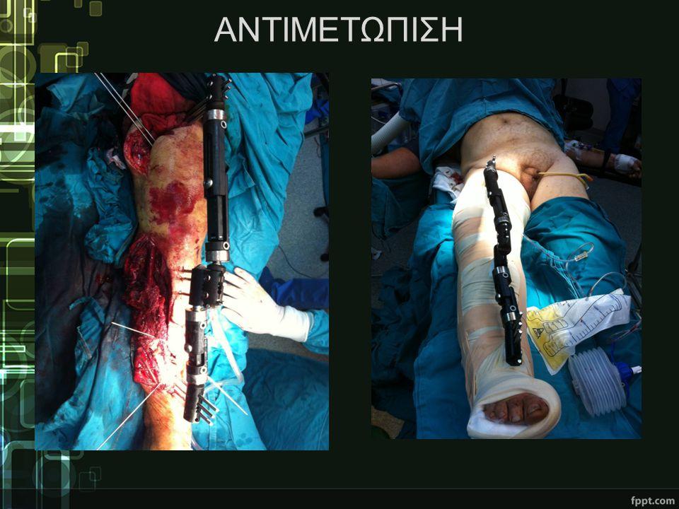 ΠΕΡΑΙΤΕΡΩ ΑΝΤΙΜΕΤΩΠΙΣΗ •3,5 μήνες μετά διακομιδή σε πλαστική χειρουργική κλινική •Μετακίνηση περονιαίων μυών και χρήση δερματικών μοσχευμάτων μερικού πάχους από την πρόσθια επιφάνεια του ΑΡ μηρού