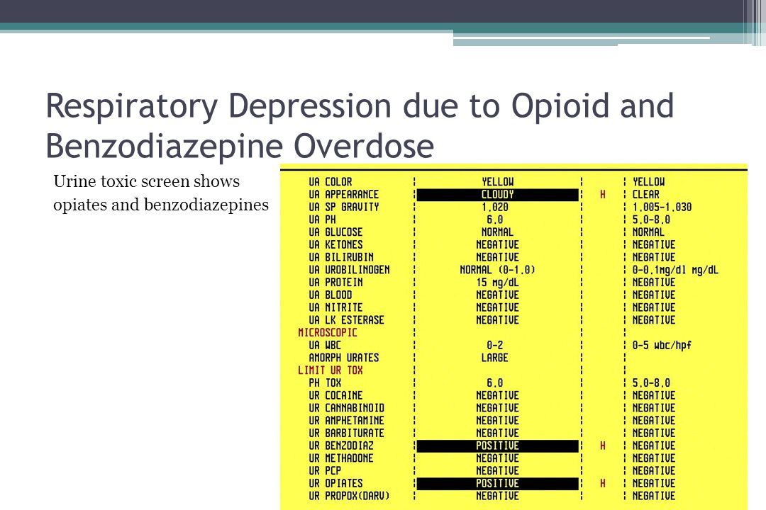 Respiratory Depression due to Opioid and Benzodiazepine Overdose Urine toxic screen shows opiates and benzodiazepines