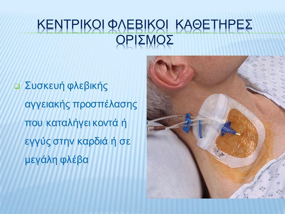  Συσκευή φλεβικής αγγειακής προσπέλασης που καταλήγει κοντά ή εγγύς στην καρδιά ή σε μεγάλη φλέβα