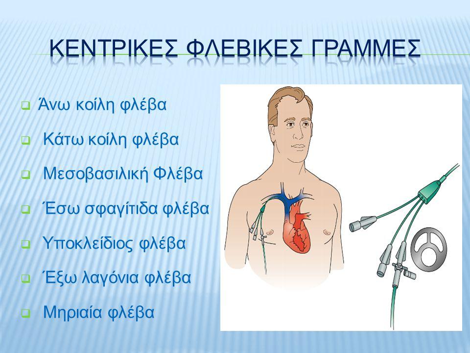  Περιορισμένη Φλεβική Προσπέλαση  Χορήγηση Υψηλής Ωσμωτικότητας ή Καυστικών Διαλυμάτων ή Φαρμάκων  Συχνές Αιμοληψίες  Μέτρηση Κεντρικής φλεβικής Πίεσης (CVP)  Συχνή χορήγηση Παραγώγων Αίματος ή μεγάλου όγκου υγρών