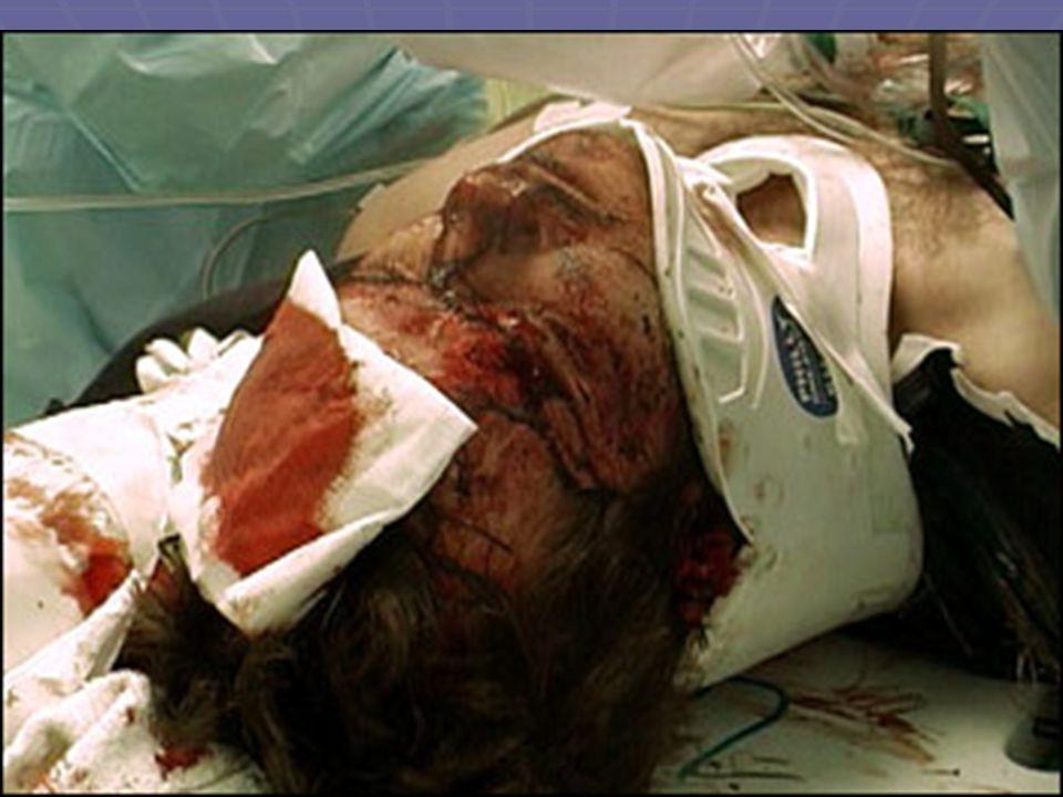 Αιμοδυναμική αστάθεια Υπόταση με ελαττωμένη Κ.Φ.Π  Συνεχιζόμενη εσωτερική αιμορραγία Υπόταση με βραδυκαρδία  Πιθανή κάκωση νωτιαίου μυελού