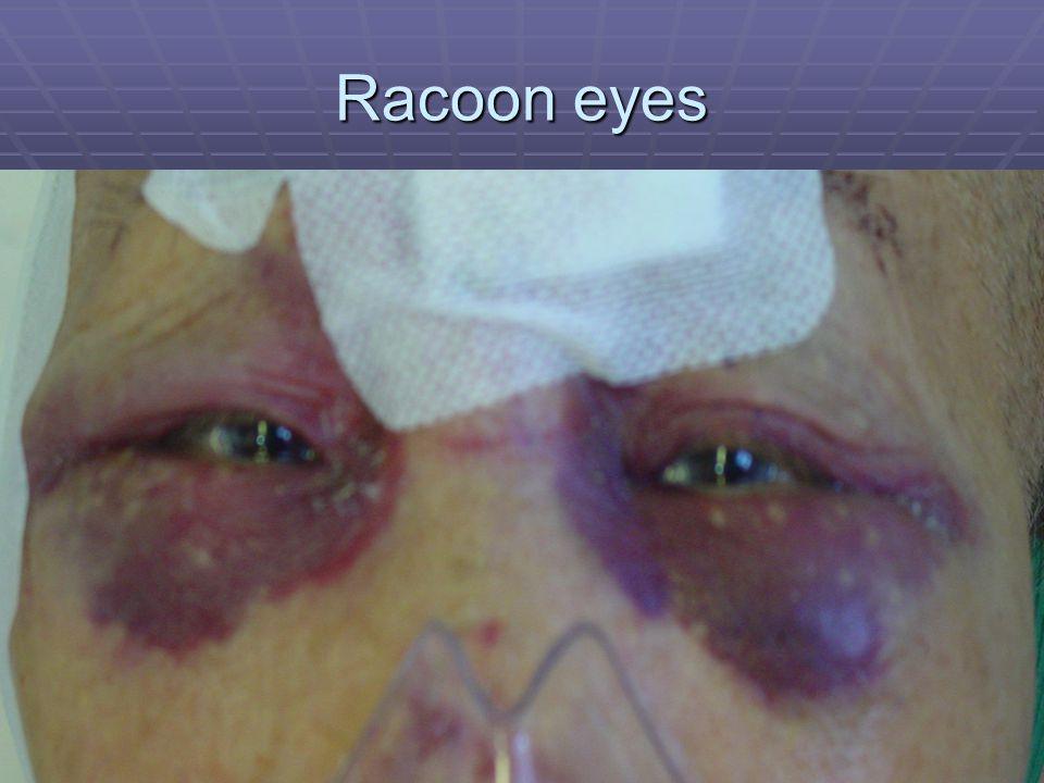 Racoon eyes