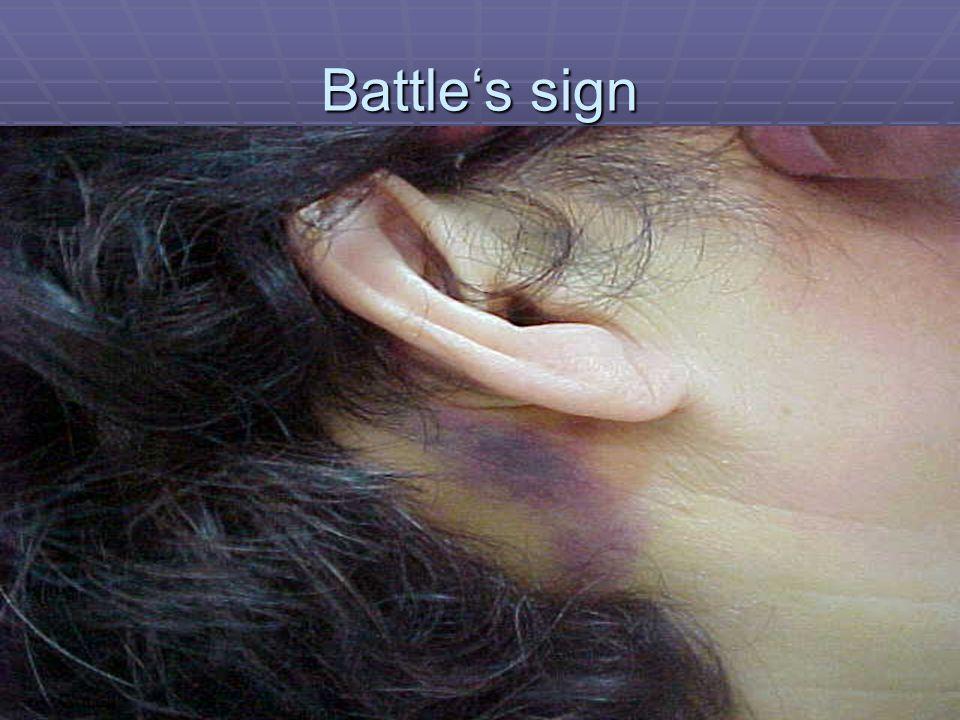 Battle's sign