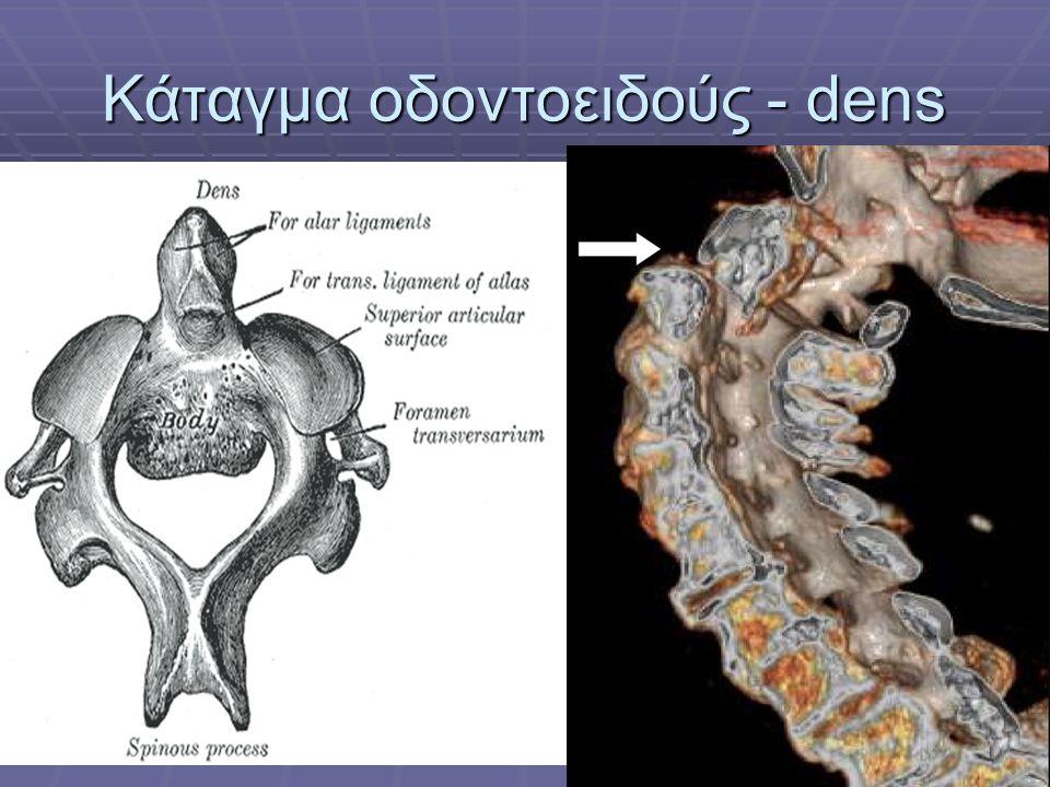 Κάταγμα οδοντοειδούς - dens