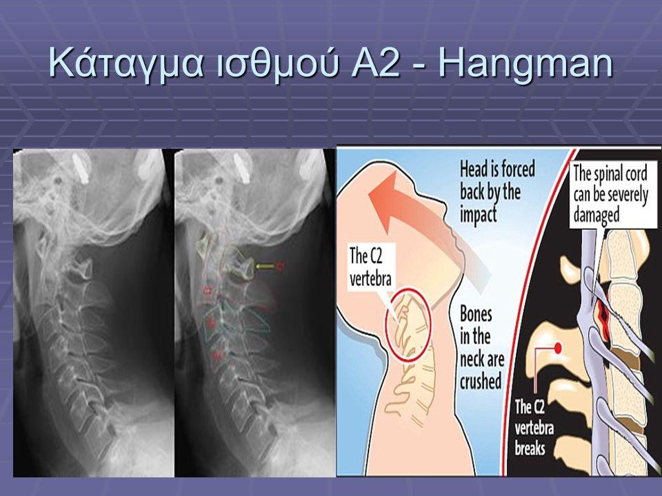 Κάταγμα ισθμού Α2 - Hangman
