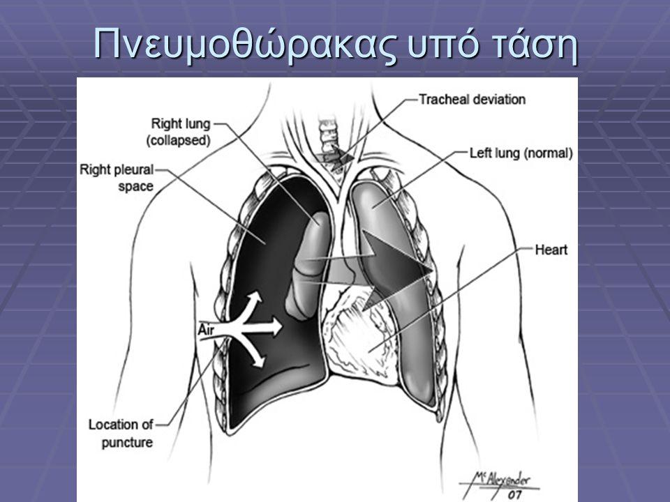 Πνευμοθώρακας υπό τάση