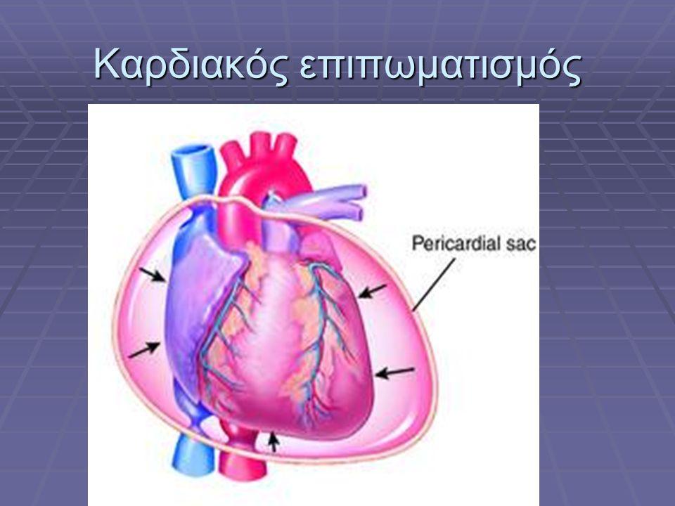 Καρδιακός επιπωματισμός