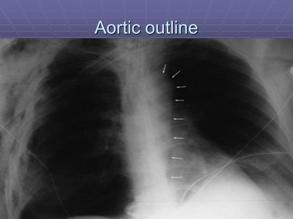 Aortic outline