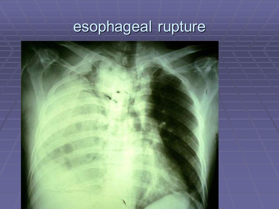 esophageal rupture