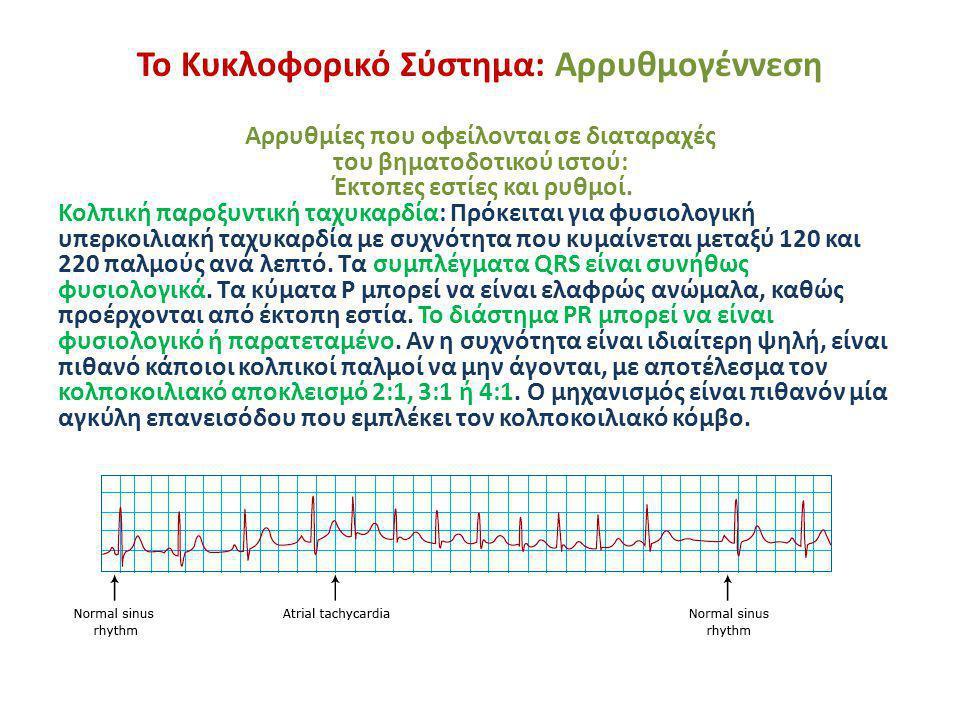 Το Κυκλοφορικό Σύστημα: Αρρυθμογέννεση Αρρυθμίες που οφείλονται σε διαταραχές του βηματοδοτικού ιστού: Έκτοπες εστίες και ρυθμοί. Κολπική παροξυντική