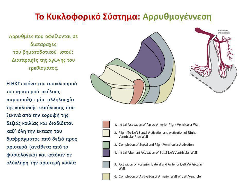 Το Κυκλοφορικό Σύστημα: Αρρυθμογέννεση Αρρυθμίες που οφείλονται σε διαταραχές του βηματοδοτικού ιστού: Διαταραχές της αγωγής του ερεθίσματος. Η ΗΚΓ ει