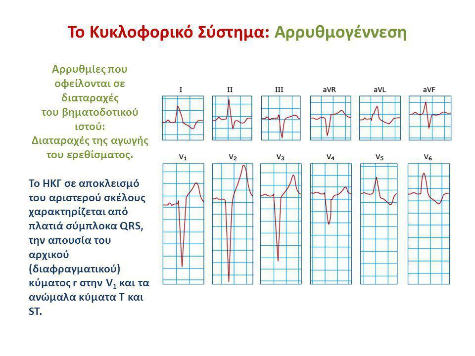Το Κυκλοφορικό Σύστημα: Αρρυθμογέννεση Αρρυθμίες που οφείλονται σε διαταραχές του βηματοδοτικού ιστού: Διαταραχές της αγωγής του ερεθίσματος. Το ΗΚΓ σ
