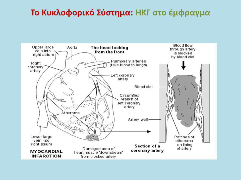 Το Κυκλοφορικό Σύστημα: ΗΚΓ στο έμφραγμα