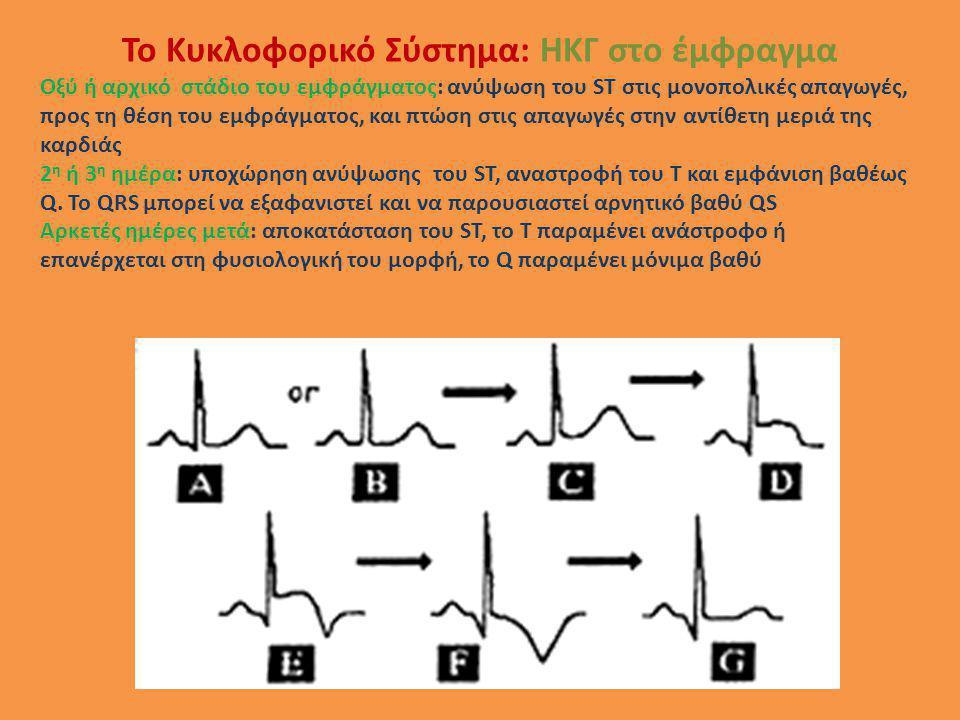 Οξύ ή αρχικό στάδιο του εμφράγματος: ανύψωση του ST στις μονοπολικές απαγωγές, προς τη θέση του εμφράγματος, και πτώση στις απαγωγές στην αντίθετη μερ