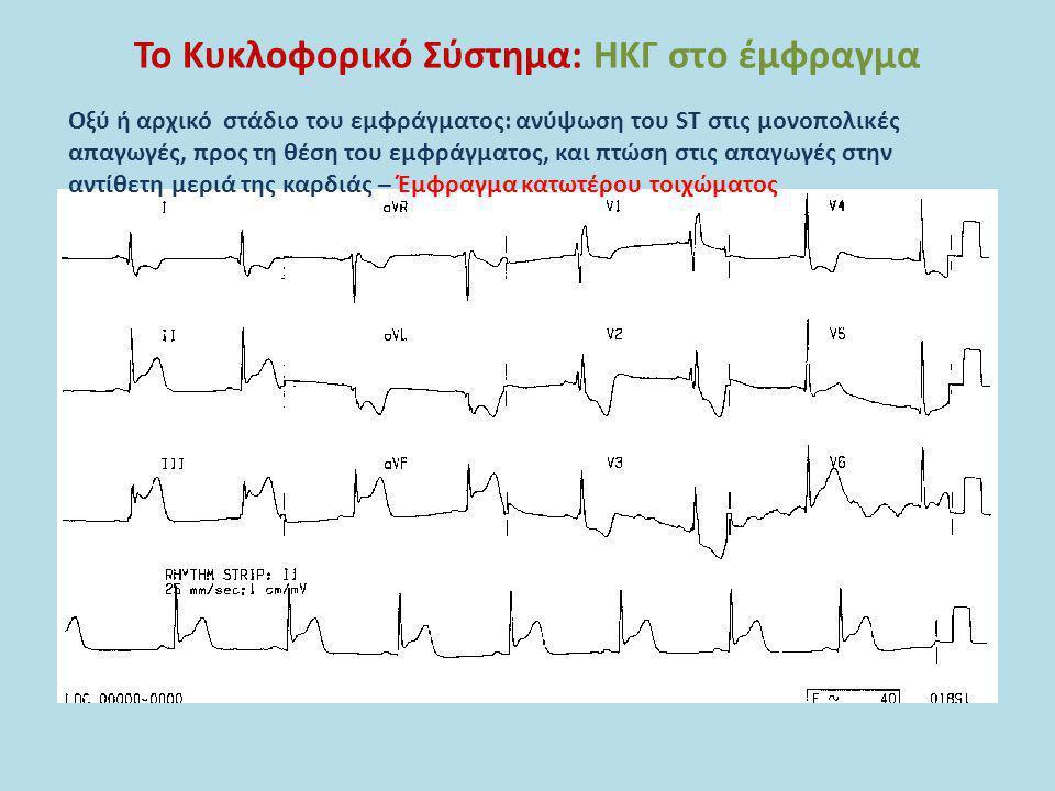 Το Κυκλοφορικό Σύστημα: ΗΚΓ στο έμφραγμα Οξύ ή αρχικό στάδιο του εμφράγματος: ανύψωση του ST στις μονοπολικές απαγωγές, προς τη θέση του εμφράγματος,