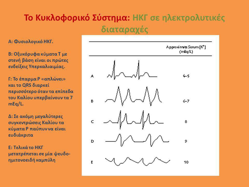 Το Κυκλοφορικό Σύστημα: ΗΚΓ σε ηλεκτρολυτικές διαταραχές A: Φυσιολογικό ΗΚΓ. B: Οξυκόρυφα κύματα Τ με στενή βάση είναι οι πρώτες ενδείξεις Υπερκαλιαιμ