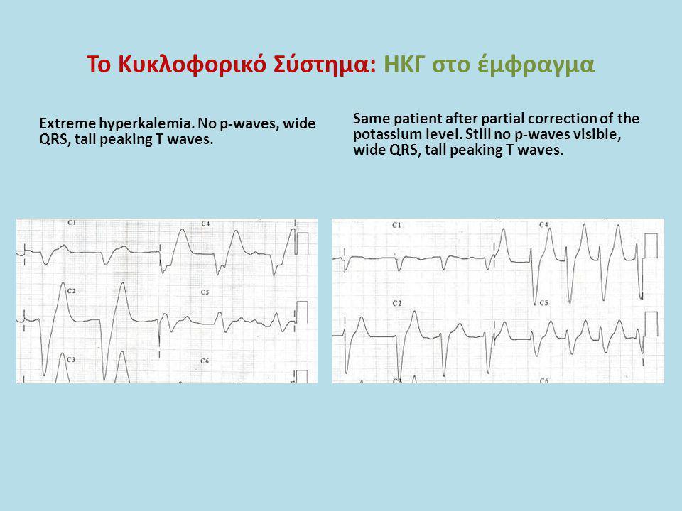 Το Κυκλοφορικό Σύστημα: ΗΚΓ στο έμφραγμα Extreme hyperkalemia. No p-waves, wide QRS, tall peaking T waves. Same patient after partial correction of th