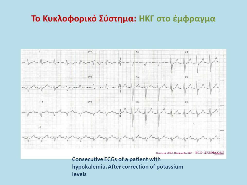 Το Κυκλοφορικό Σύστημα: ΗΚΓ στο έμφραγμα Consecutive ECGs of a patient with hypokalemia. After correction of potassium levels