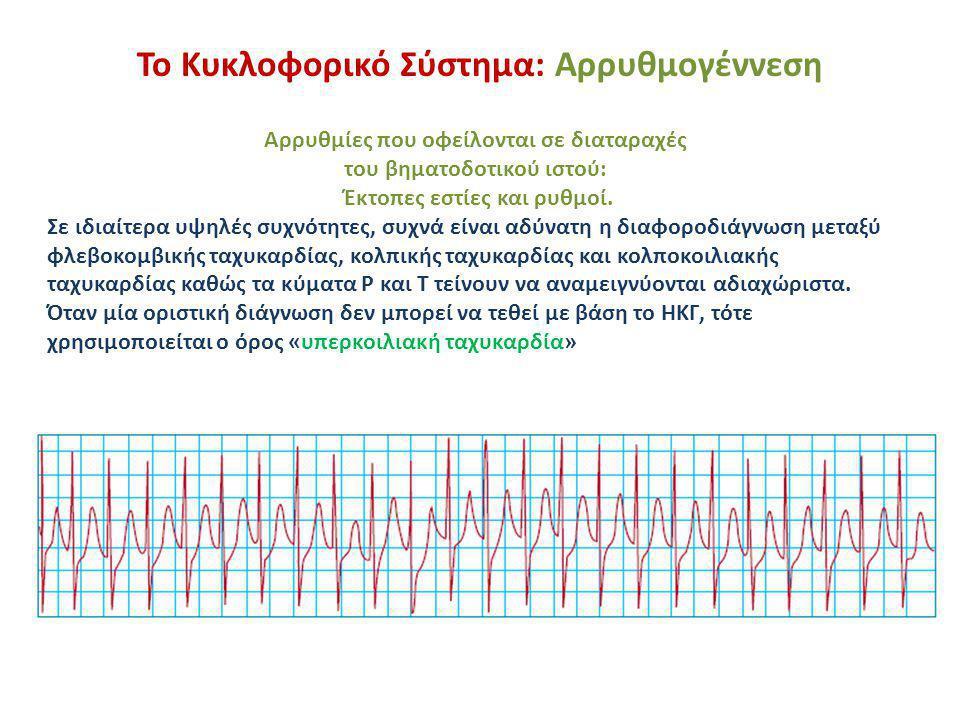 Το Κυκλοφορικό Σύστημα: ΗΚΓ στο έμφραγμα Οξύ ή αρχικό στάδιο του εμφράγματος: ανύψωση του ST στις μονοπολικές απαγωγές, προς τη θέση του εμφράγματος, και πτώση στις απαγωγές στην αντίθετη μεριά της καρδιάς – Έμφραγμα κατωτέρου τοιχώματος