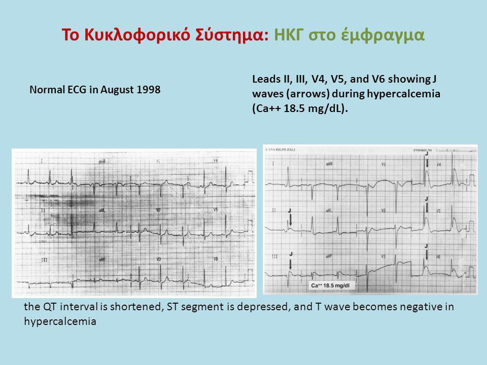 Το Κυκλοφορικό Σύστημα: ΗΚΓ στο έμφραγμα Normal ECG in August 1998 Leads II, III, V4, V5, and V6 showing J waves (arrows) during hypercalcemia (Ca++ 1