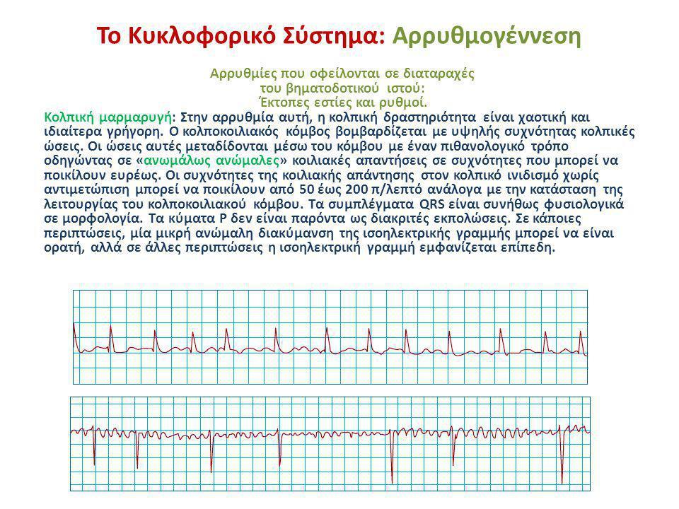 Το Κυκλοφορικό Σύστημα: Αρρυθμογέννεση Αρρυθμίες που οφείλονται σε διαταραχές του βηματοδοτικού ιστού: Έκτοπες εστίες και ρυθμοί. Κολπική μαρμαρυγή: Σ